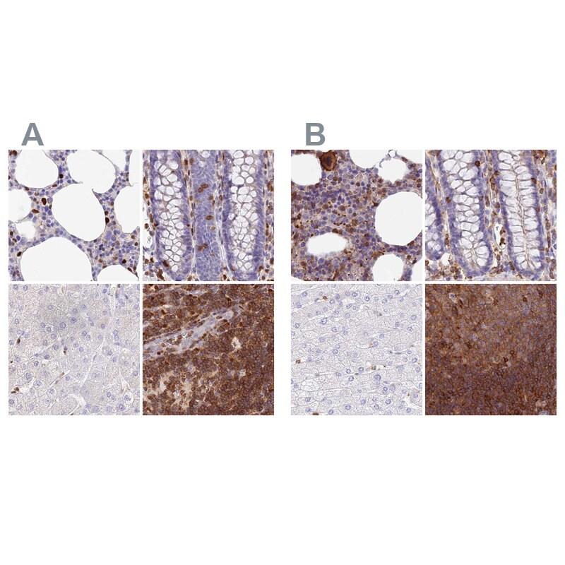 DENND1C Antibody in Immunohistochemistry (IHC)
