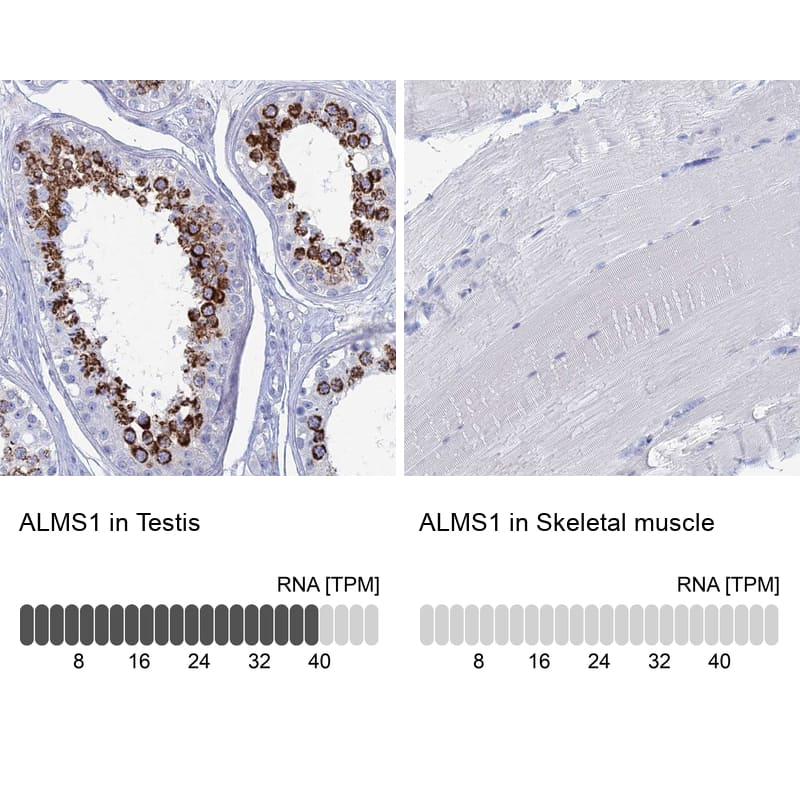 ALMS1 Antibody in Relative expression