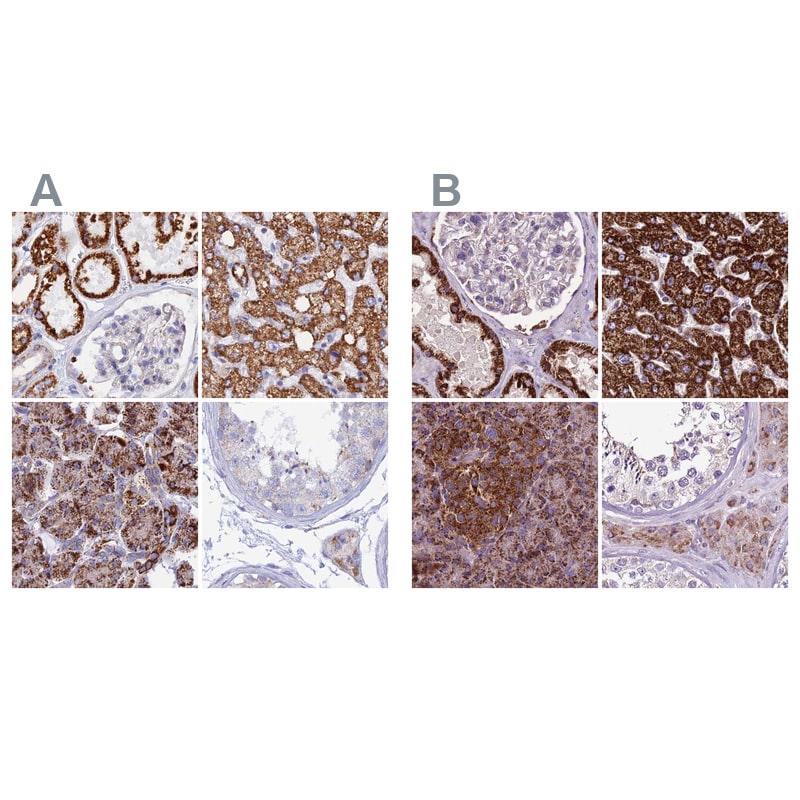 GCDH Antibody in Immunohistochemistry (IHC)