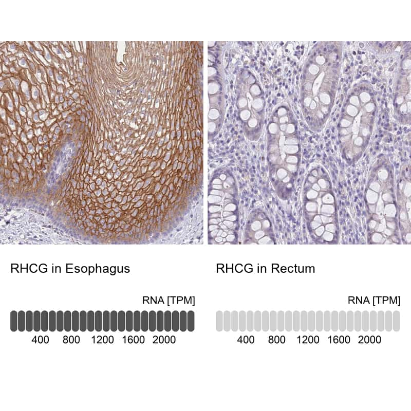 RHCG Antibody in Immunohistochemistry (IHC)