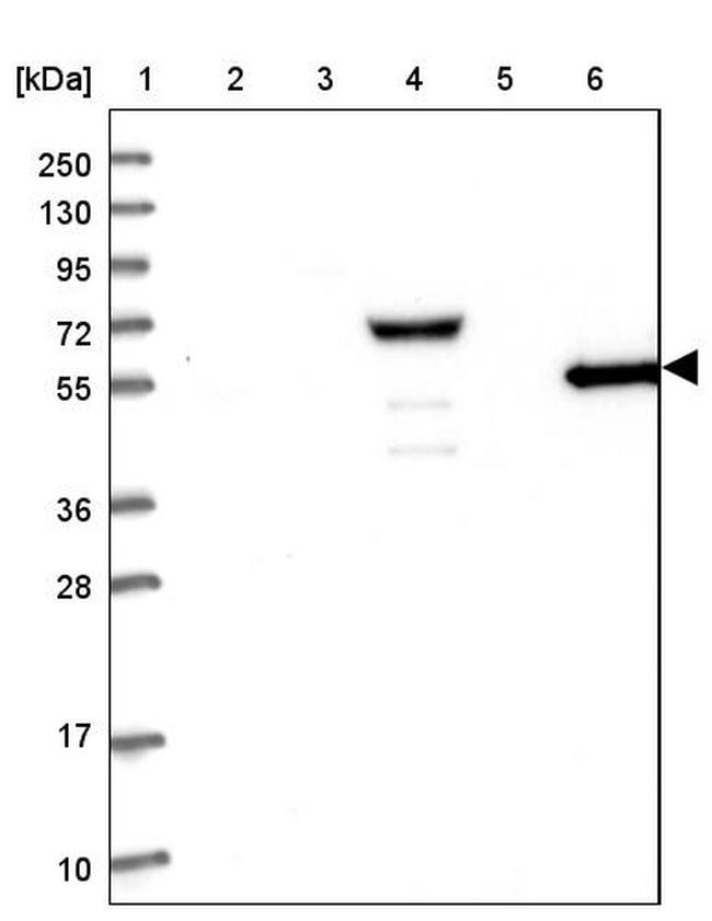 RHCG Antibody in Western Blot (WB)