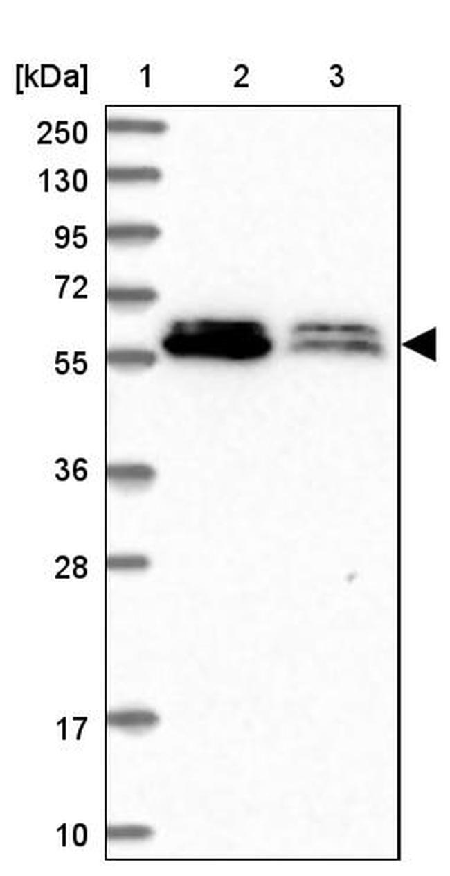 ALG10 Antibody in Western Blot (WB)