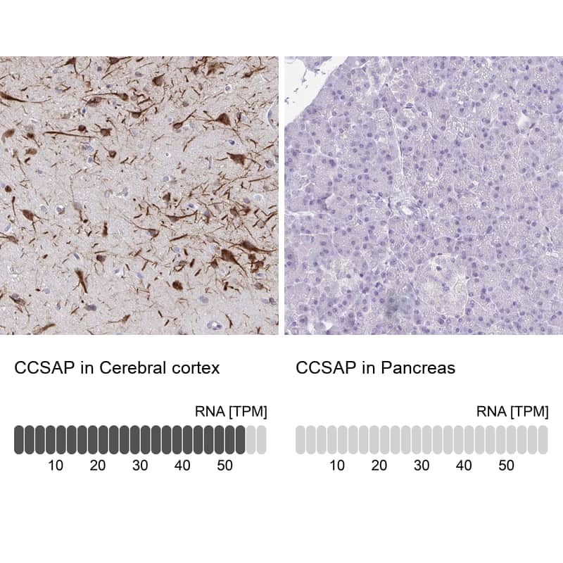 C1orf96 Antibody in Relative expression