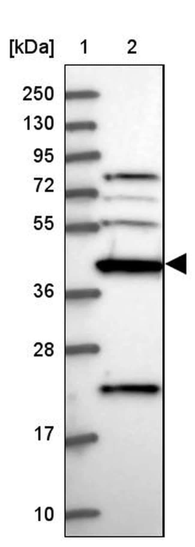 CKMT1A Antibody in Western Blot (WB)