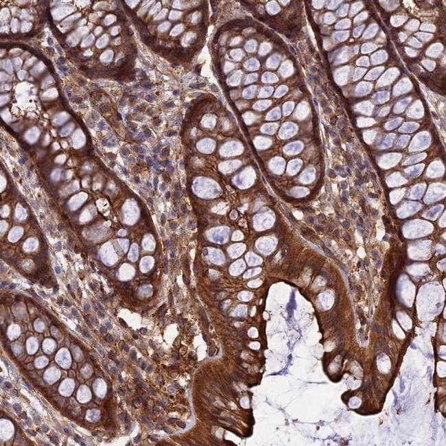 CRTAP Antibody in Immunohistochemistry (IHC)