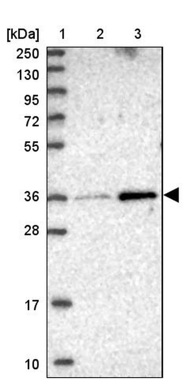 MVB12B Antibody in Western Blot (WB)