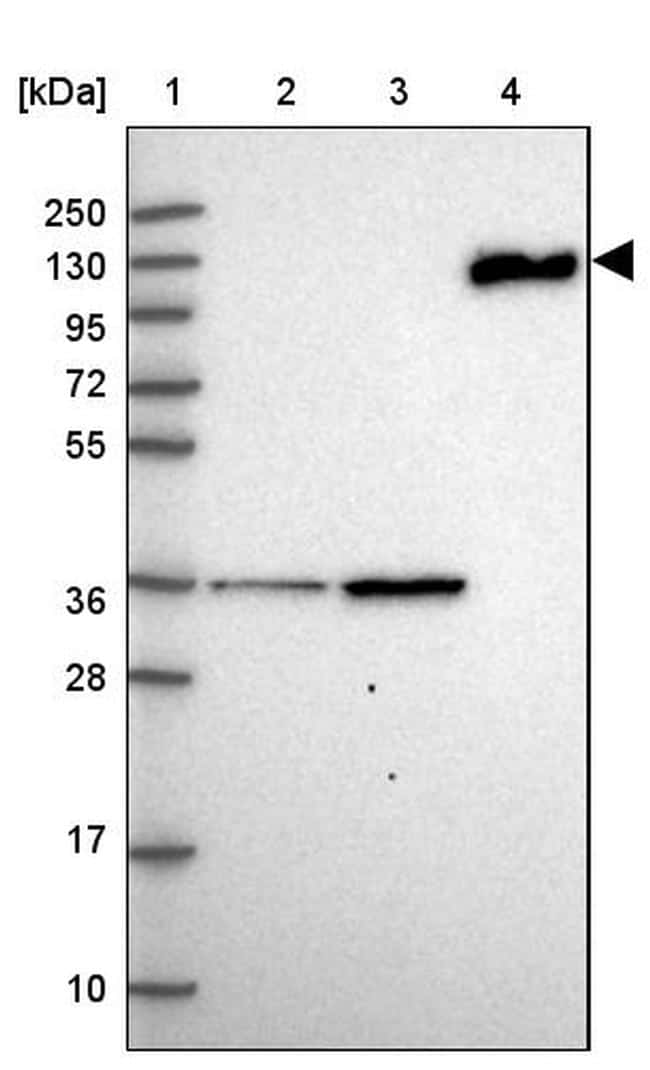 Complement C6 Antibody in Western Blot (WB)