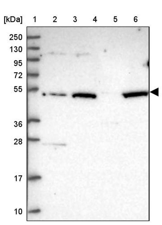VWCE Antibody in Western Blot (WB)