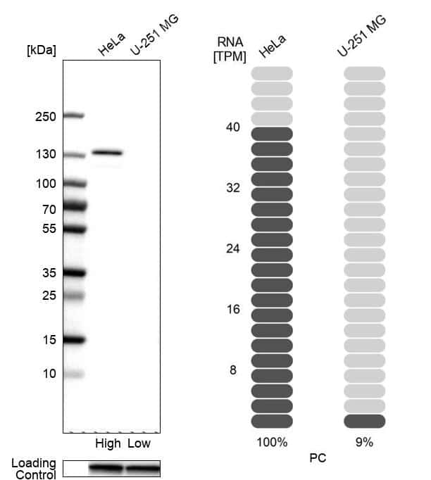 Pyruvate Carboxylase Antibody in Western Blot (WB)