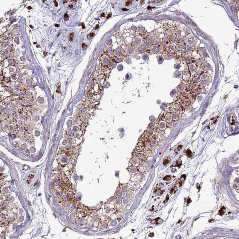 VPS36 Antibody in Immunohistochemistry (IHC)