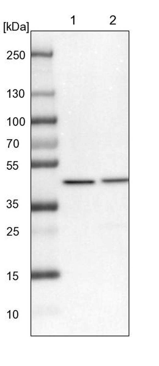 VPS36 Antibody in Western Blot (WB)