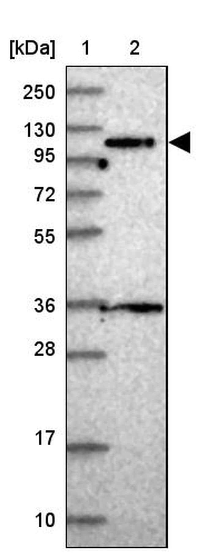 PPP6R1 Antibody in Western Blot (WB)