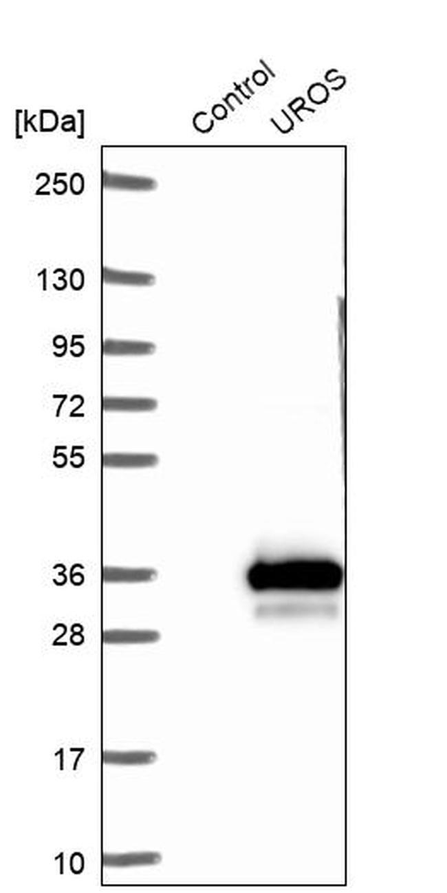 UROS Antibody in Western Blot (WB)