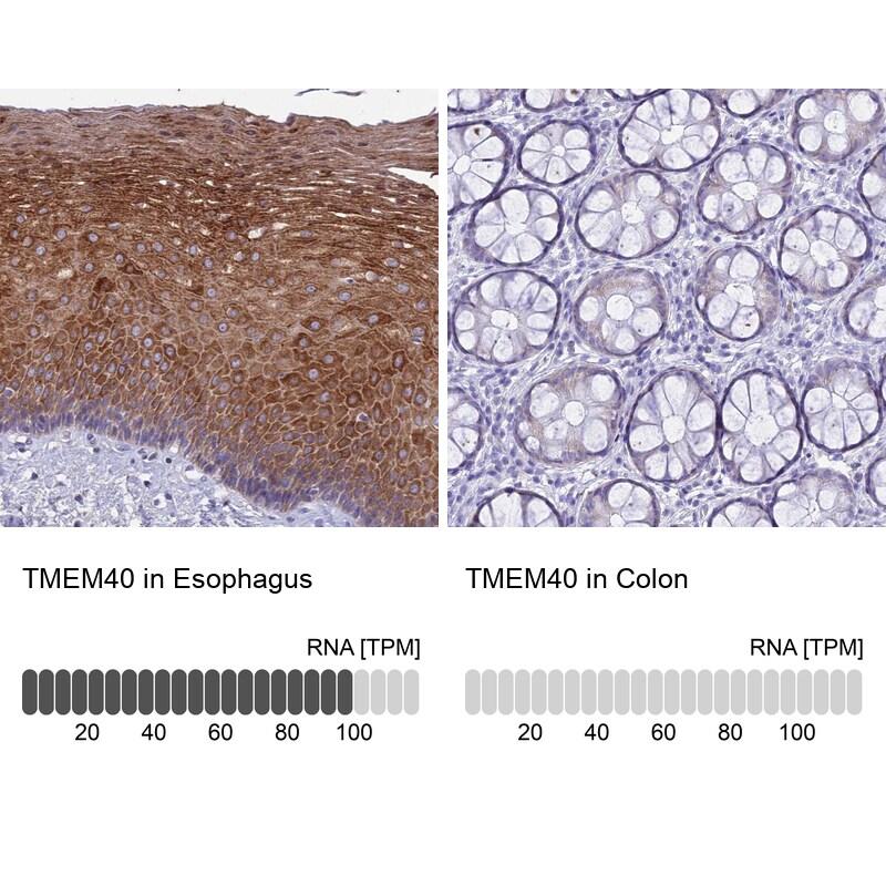 TMEM40 Antibody in Immunohistochemistry (IHC)