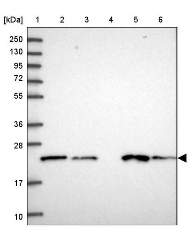 COMMD2 Antibody in Western Blot (WB)