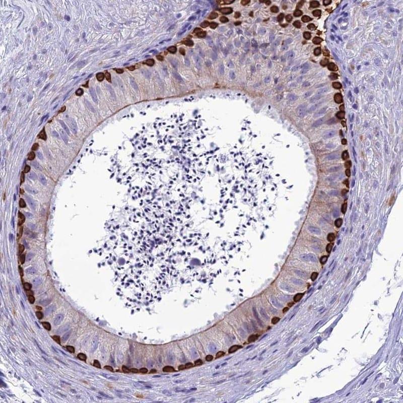 SPTLC3 Antibody in Immunohistochemistry (IHC)