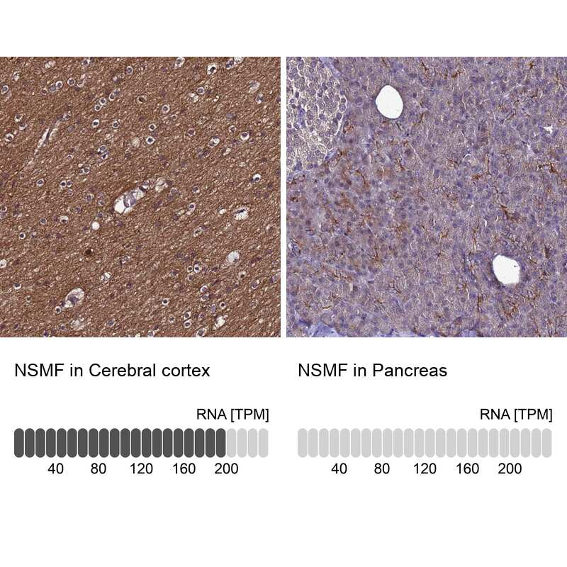 NELF Antibody in Immunohistochemistry (IHC)