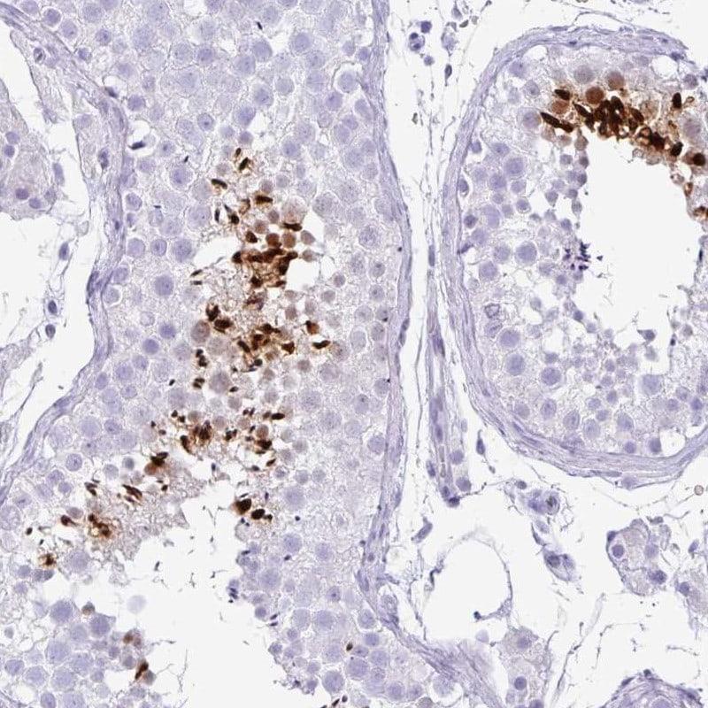 TNP1 Antibody in Immunohistochemistry (IHC)