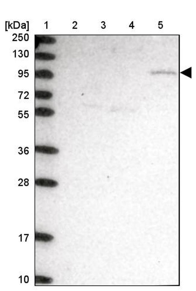 CLCN3 Antibody in Western Blot (WB)