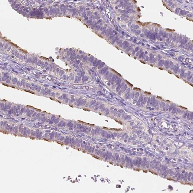CATIP Antibody in Immunohistochemistry (IHC)