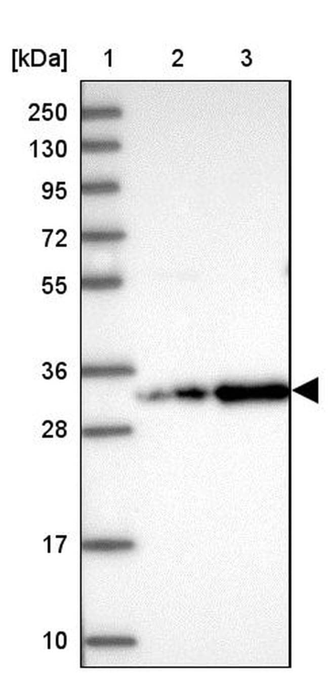 CCDC127 Antibody in Western Blot (WB)