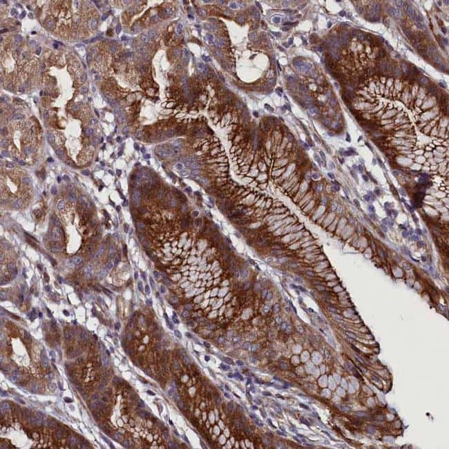 FAM195B Antibody in Immunohistochemistry (IHC)