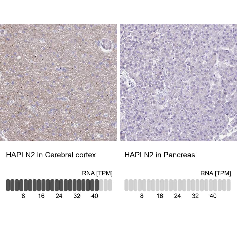 HAPLN2 Antibody in Immunohistochemistry (IHC)