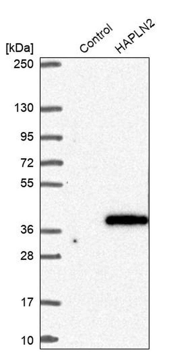 HAPLN2 Antibody in Western Blot (WB)