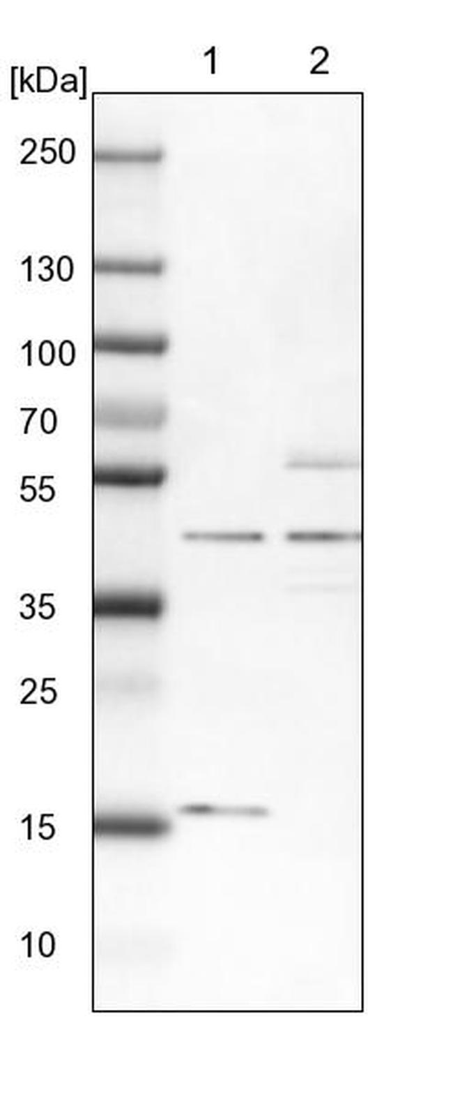 TBC1D13 Antibody in Western Blot (WB)
