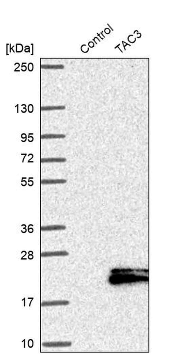 NKB Antibody in Western Blot (WB)