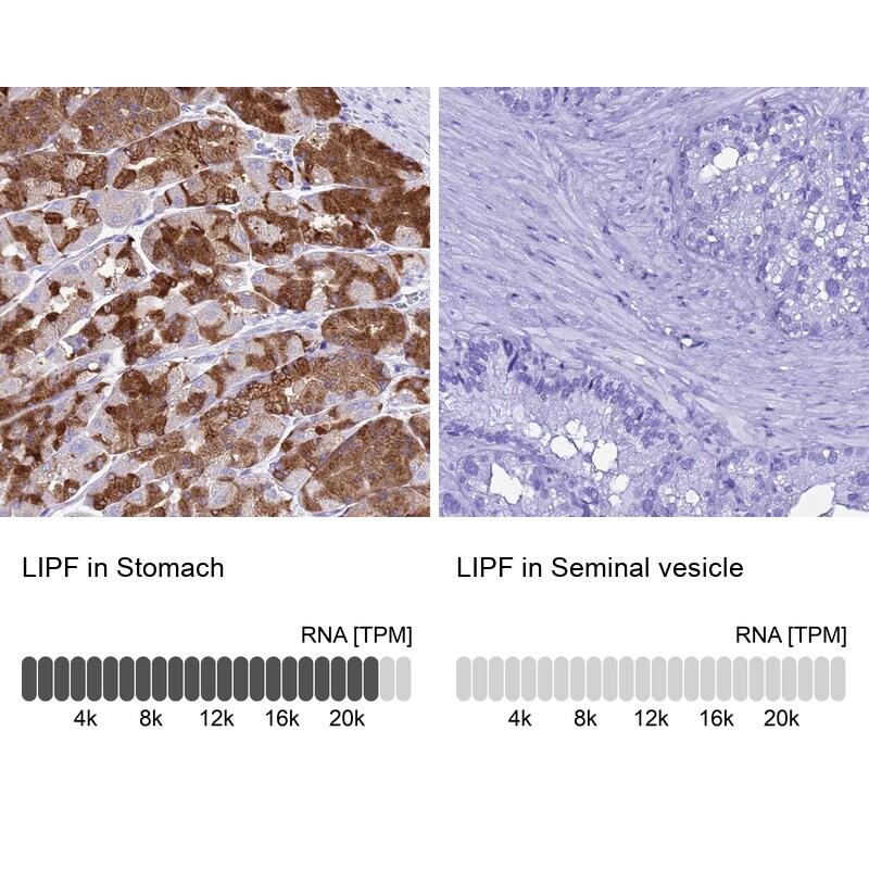 LIPF Antibody in Immunohistochemistry (IHC)