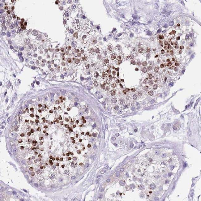 SPESP1 Antibody in Immunohistochemistry (IHC)