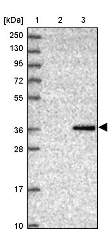 CRHBP Antibody in Western Blot (WB)