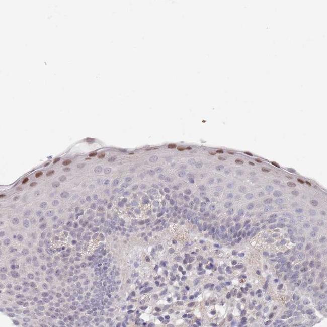 RNF169 Antibody in Immunohistochemistry (IHC)
