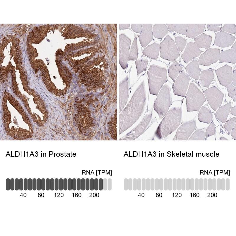 ALDH1A3 Antibody in Immunohistochemistry (IHC)
