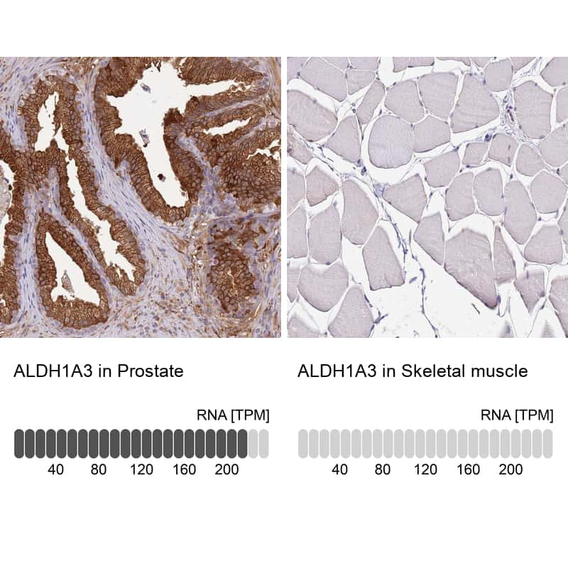 ALDH1A3 Antibody in Relative expression