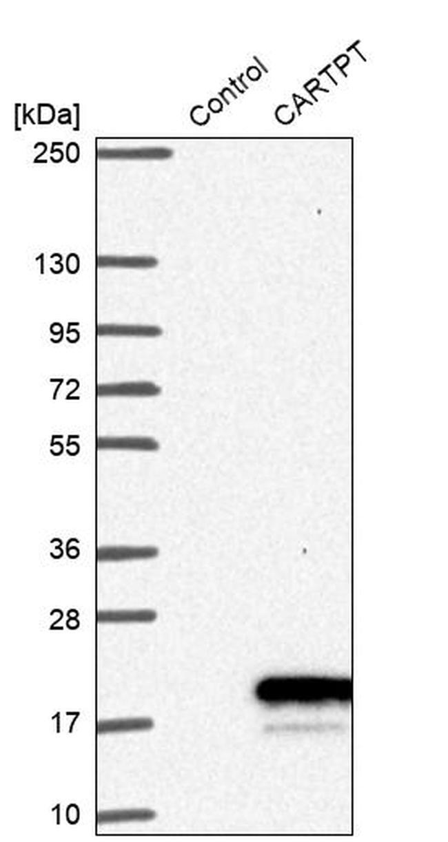 CARTPT Antibody in Western Blot (WB)
