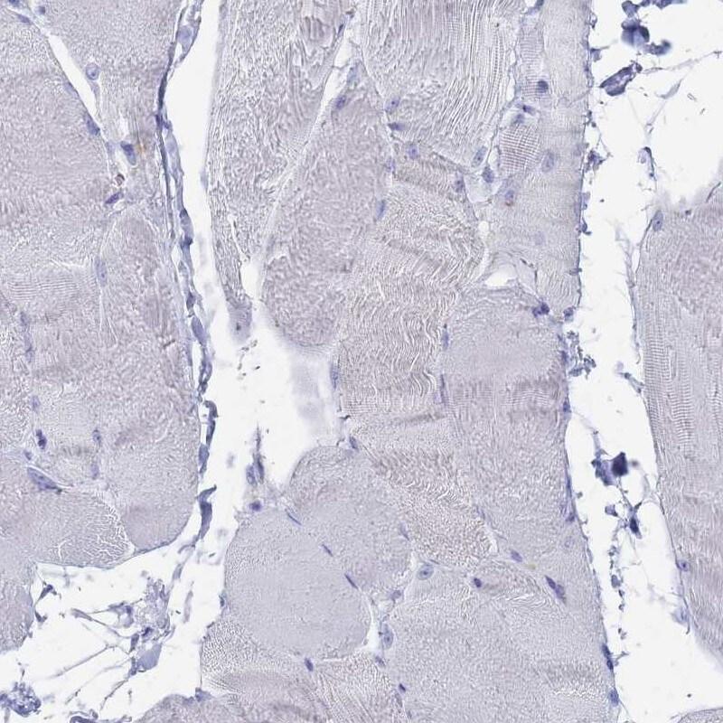 FUCA1 Antibody in Immunohistochemistry (IHC)
