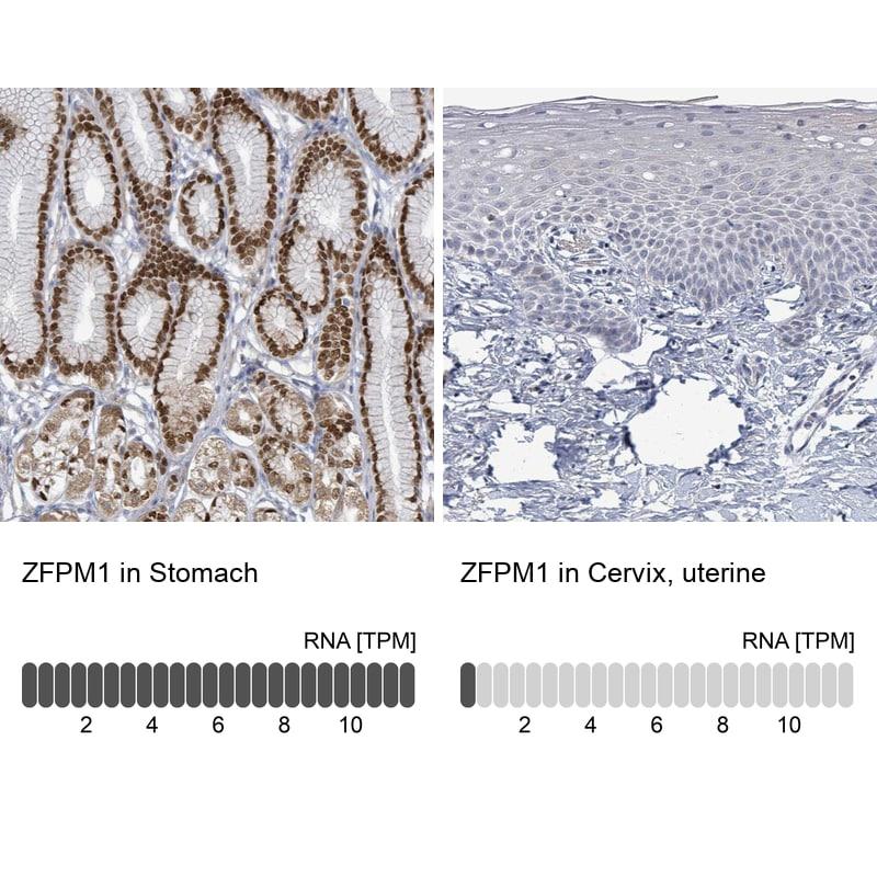 ZFPM1 Antibody in Relative expression