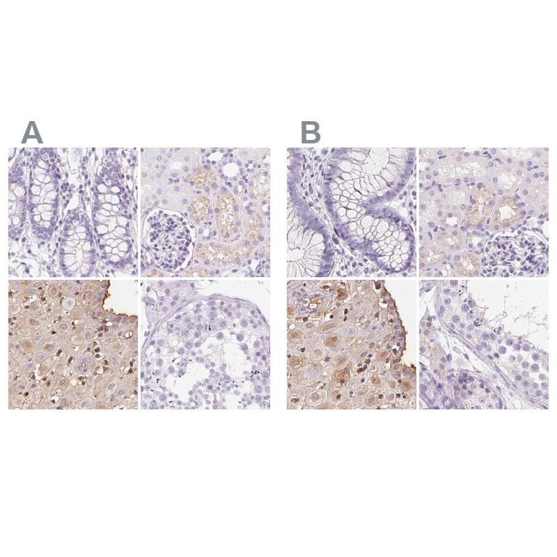 IGFBP1 Antibody in Immunohistochemistry (IHC)