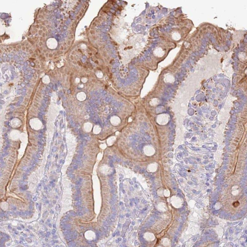 SLC44A4 Antibody in Immunohistochemistry (IHC)
