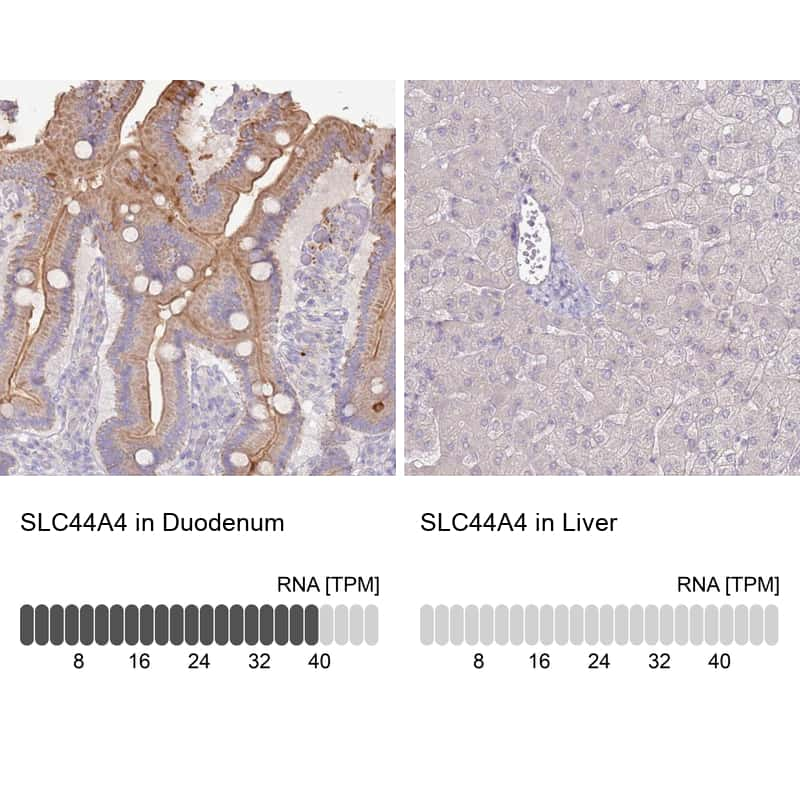 SLC44A4 Antibody in Relative expression