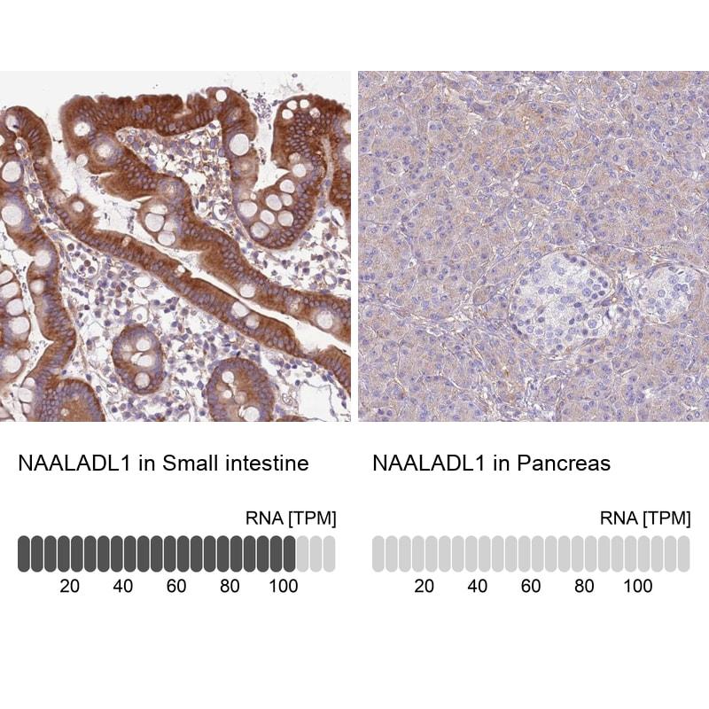 NAALADL1 Antibody in Immunohistochemistry (IHC)
