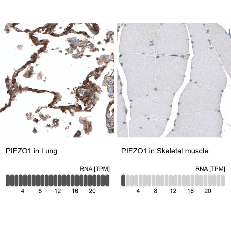 PIEZO1 Antibody in Relative expression