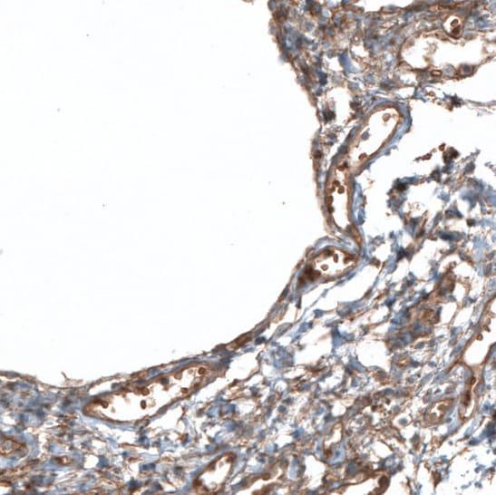 PIEZO1 Antibody in Immunohistochemistry (IHC)