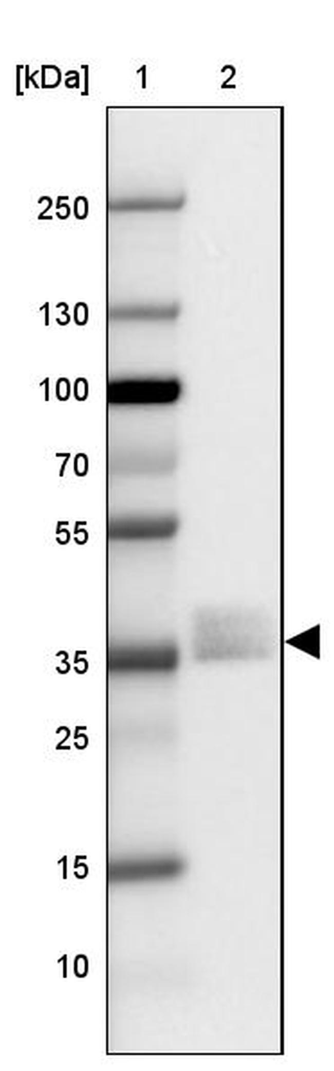 NAPSA Antibody in Western Blot (WB)