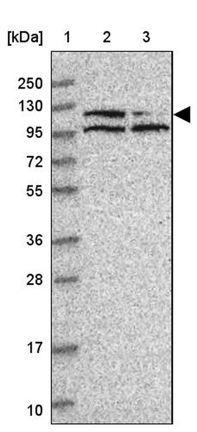 PPP1R10 Antibody in Western Blot (WB)