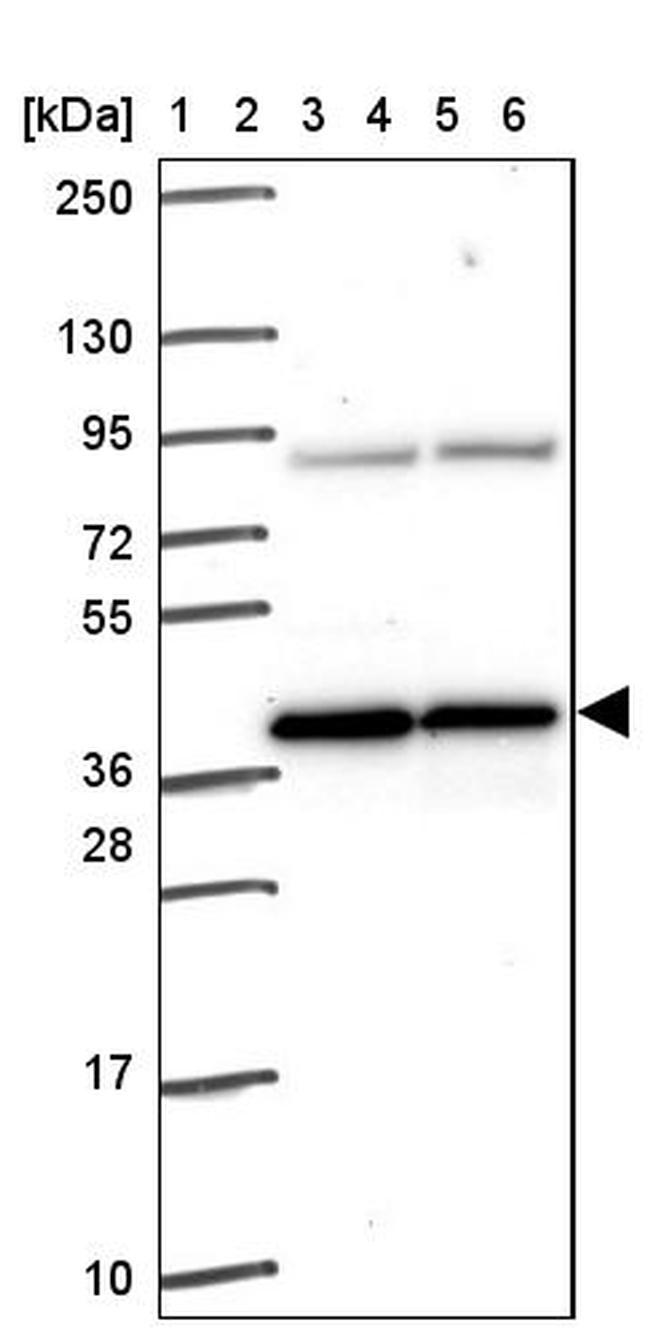 PIH1D1 Antibody in Western Blot (WB)