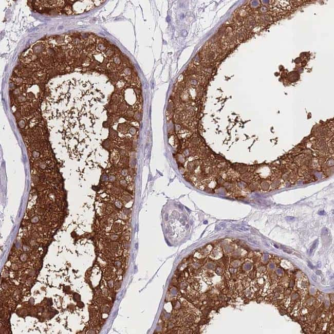 OR11H1/OR11H2/OR11H12 Antibody in Immunohistochemistry (IHC)