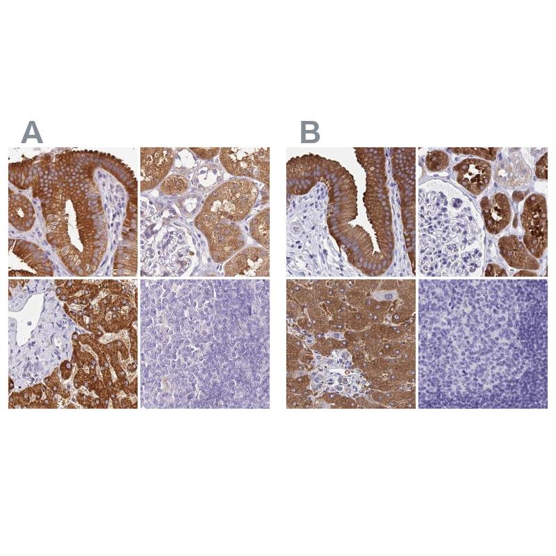 HGD Antibody in Immunohistochemistry (IHC)